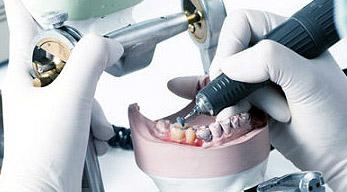 protetyka, implantoprotetyka