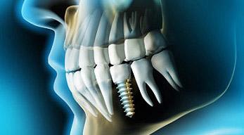implanty Mysłowice, Jaworzno i Sosnowiec