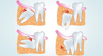 chirurgia stomatologiczna i szczękowa